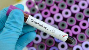Test per diagnosi da coronavirus